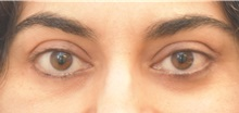 Eyelid Surgery After Photo by Keshav Magge, MD; Bethesda, MD - Case 37687