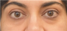 Eyelid Surgery Before Photo by Keshav Magge, MD; Bethesda, MD - Case 37687