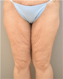 Thigh Lift Before Photo by Keshav Magge, MD; Bethesda, MD - Case 37692