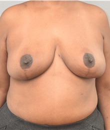 Breast Reduction After Photo by Keshav Magge, MD; Bethesda, MD - Case 37707