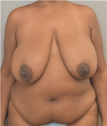 Breast Reduction Before Photo by Keshav Magge, MD; Bethesda, MD - Case 37707