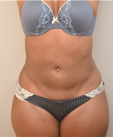 Liposuction After Photo by Keshav Magge, MD; Bethesda, MD - Case 38563