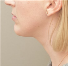 Chin Augmentation After Photo by Keshav Magge, MD; Bethesda, MD - Case 38622