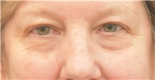 Eyelid Surgery Before Photo by Keshav Magge, MD; Bethesda, MD - Case 38627