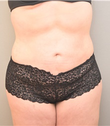 Liposuction After Photo by Keshav Magge, MD; Bethesda, MD - Case 38630