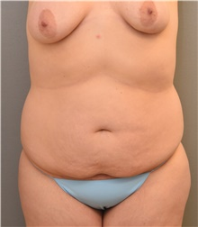 Liposuction Before Photo by Keshav Magge, MD; Bethesda, MD - Case 38630