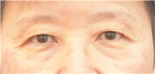 Eyelid Surgery Before Photo by Keshav Magge, MD; Bethesda, MD - Case 38632