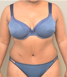 Tummy Tuck After Photo by Keshav Magge, MD; Bethesda, MD - Case 38637