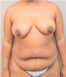 Tummy Tuck Before Photo by Keshav Magge, MD; Bethesda, MD - Case 38637