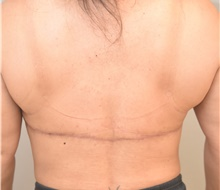 Body Contouring After Photo by Keshav Magge, MD; Bethesda, MD - Case 38640