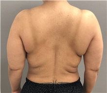 Body Contouring Before Photo by Keshav Magge, MD; Bethesda, MD - Case 38640