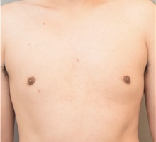 Male Breast Reduction After Photo by Keshav Magge, MD; Bethesda, MD - Case 38642