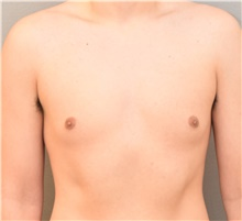 Male Breast Reduction Before Photo by Keshav Magge, MD; Bethesda, MD - Case 38642