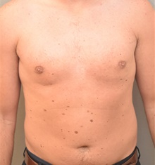 Male Breast Reduction After Photo by Keshav Magge, MD; Bethesda, MD - Case 38643