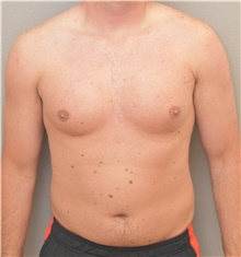 Male Breast Reduction Before Photo by Keshav Magge, MD; Bethesda, MD - Case 38643