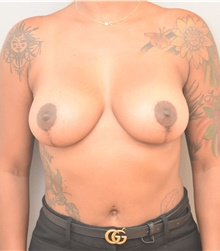 Breast Lift After Photo by Keshav Magge, MD; Bethesda, MD - Case 38666