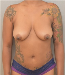 Breast Lift Before Photo by Keshav Magge, MD; Bethesda, MD - Case 38666
