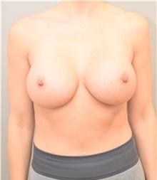 Breast Augmentation After Photo by Keshav Magge, MD; Bethesda, MD - Case 39010