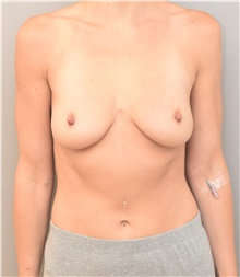 Breast Augmentation Before Photo by Keshav Magge, MD; Bethesda, MD - Case 39010
