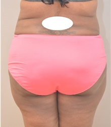 Buttock Lift with Augmentation After Photo by Keshav Magge, MD; Bethesda, MD - Case 39352