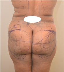 Buttock Lift with Augmentation Before Photo by Keshav Magge, MD; Bethesda, MD - Case 39352
