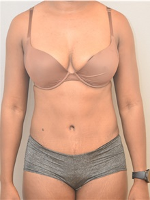Tummy Tuck After Photo by Keshav Magge, MD; Bethesda, MD - Case 39371