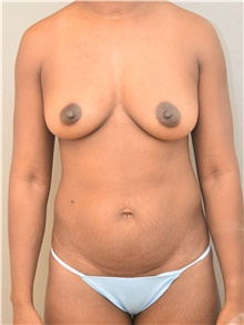 Tummy Tuck Before Photo by Keshav Magge, MD; Bethesda, MD - Case 39371