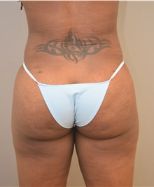 Buttock Lift with Augmentation After Photo by Keshav Magge, MD; Bethesda, MD - Case 39384