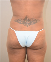 Buttock Lift with Augmentation Before Photo by Keshav Magge, MD; Bethesda, MD - Case 39384