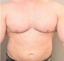 Male Breast Reduction After Photo by Keshav Magge, MD; Bethesda, MD - Case 39393