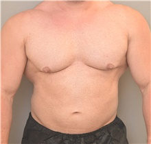 Male Breast Reduction Before Photo by Keshav Magge, MD; Bethesda, MD - Case 39393
