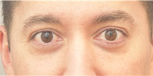 Eyelid Surgery After Photo by Keshav Magge, MD; Bethesda, MD - Case 39403
