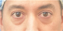 Eyelid Surgery Before Photo by Keshav Magge, MD; Bethesda, MD - Case 39403