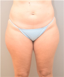 Liposuction Before Photo by Keshav Magge, MD; Bethesda, MD - Case 39495