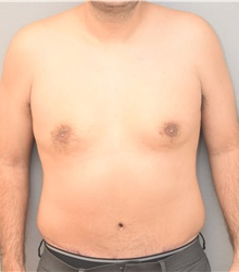 Male Breast Reduction After Photo by Keshav Magge, MD; Bethesda, MD - Case 39543