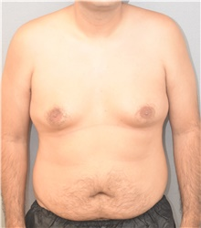 Male Breast Reduction Before Photo by Keshav Magge, MD; Bethesda, MD - Case 39543