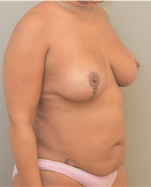 Breast Lift After Photo by Keshav Magge, MD; Bethesda, MD - Case 39558