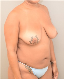 Breast Lift Before Photo by Keshav Magge, MD; Bethesda, MD - Case 39558