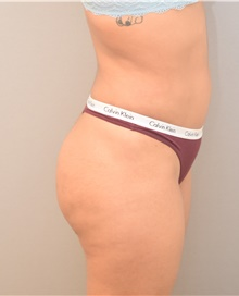 Buttock Lift with Augmentation After Photo by Keshav Magge, MD; Bethesda, MD - Case 39569