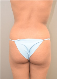 Buttock Lift with Augmentation Before Photo by Keshav Magge, MD; Bethesda, MD - Case 39569