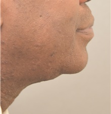 Chin Augmentation After Photo by Keshav Magge, MD; Bethesda, MD - Case 39639
