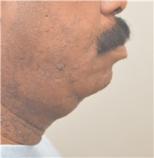 Chin Augmentation Before Photo by Keshav Magge, MD; Bethesda, MD - Case 39639