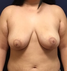Breast Reduction After Photo by Brian Pinsky, MD, FACS; Garden City, NY - Case 30431