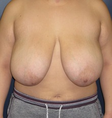 Breast Reduction Before Photo by Brian Pinsky, MD, FACS; Garden City, NY - Case 30431