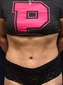 Tummy Tuck After Photo by Brian Pinsky, MD, FACS; Huntington Station, NY - Case 30432