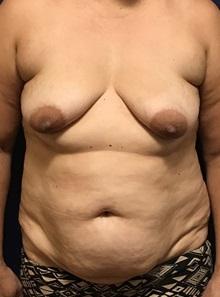 Tummy Tuck Before Photo by Brian Pinsky, MD, FACS; Huntington Station, NY - Case 30432