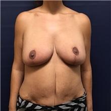 Breast Lift After Photo by Brian Pinsky, MD, FACS; Huntington Station, NY - Case 30433