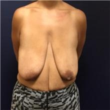 Breast Lift Before Photo by Brian Pinsky, MD, FACS; Huntington Station, NY - Case 30433