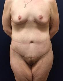 Body Lift After Photo by Brian Pinsky, MD, FACS; Babylon, NY - Case 30434