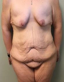 Body Lift Before Photo by Brian Pinsky, MD, FACS; Babylon, NY - Case 30434
